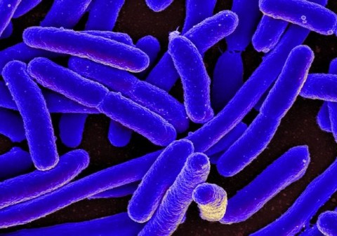 Superbug threat is a 'ticking time bomb'